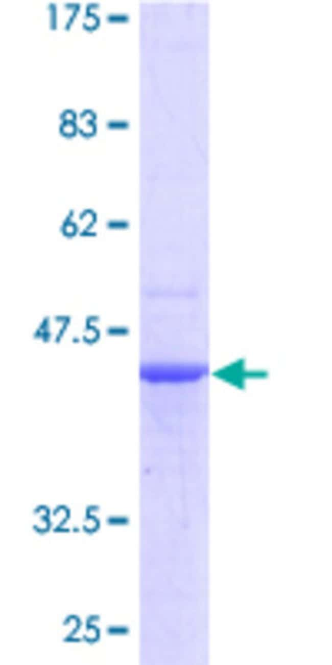 AbnovaHuman PDCD6 Full-length ORF (AAH12384, 1 a.a. - 191 a.a.) Recombinant
