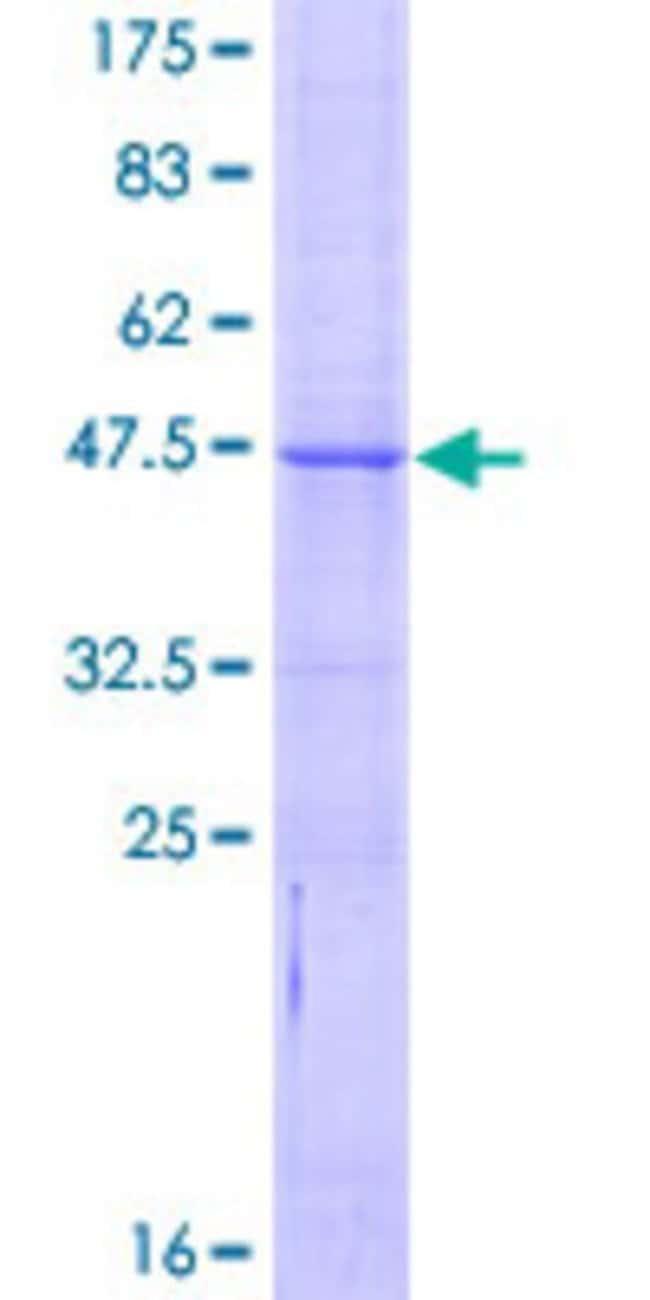 AbnovaHuman BCL2L10 Full-length ORF (NP_065129.1, 1 a.a. - 204 a.a.) Recombinant