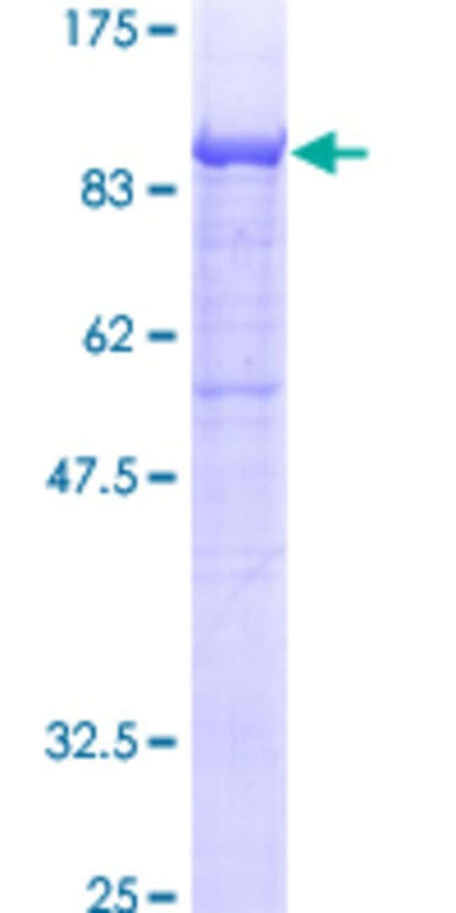 Abnova™ Human GALC Full-length ORF (AAH36518, 27 a.a. - 669 a.a.) Recombinant Protein with GST-tag at N-terminal 25μg Abnova™ Human GALC Full-length ORF (AAH36518, 27 a.a. - 669 a.a.) Recombinant Protein with GST-tag at N-terminal