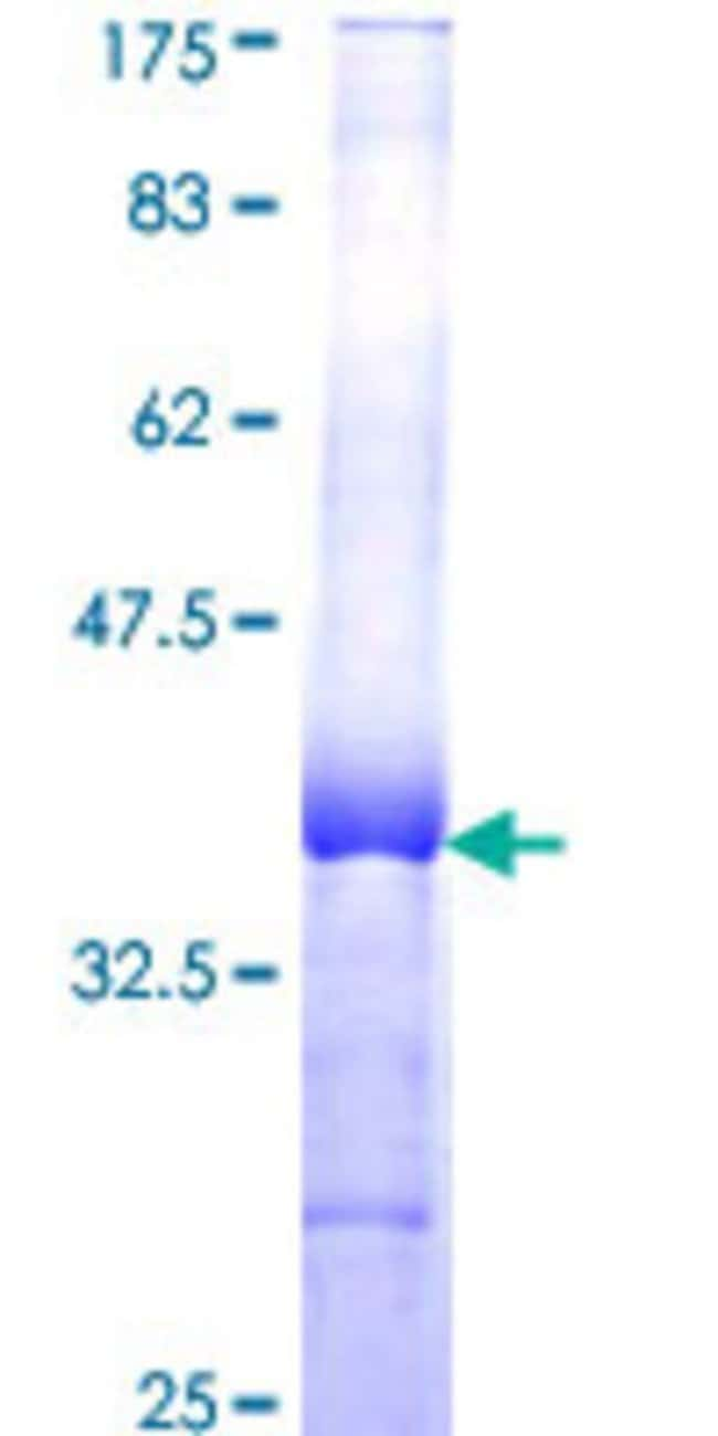 Abnova™Human BCL2L10 Partial ORF (NP_065129, 1 a.a. - 92 a.a.) Recombinant Protein with GST-tag at N-terminal 10μg Abnova™Human BCL2L10 Partial ORF (NP_065129, 1 a.a. - 92 a.a.) Recombinant Protein with GST-tag at N-terminal
