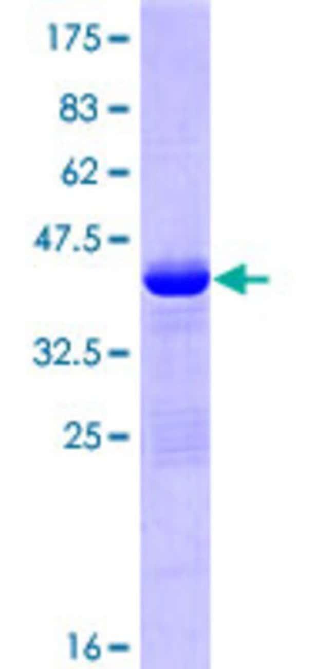 AbnovaHuman BCL2L11 Full-length ORF (ENSP00000309226, 1 a.a. - 109 a.a.)