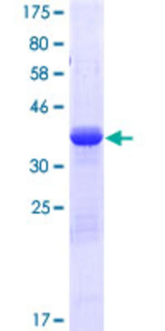 AbnovaHuman BCL2L11 Full-length ORF (NP_996885.1, 1 a.a. - 112 a.a.) Recombinant