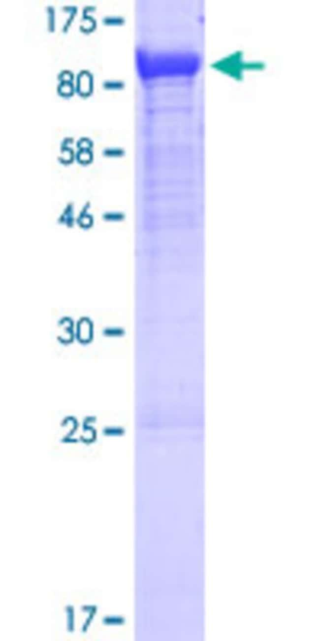 AbnovaHuman GNE Full-length ORF (NP_005467.1, 1 a.a. - 722 a.a.) Recombinant