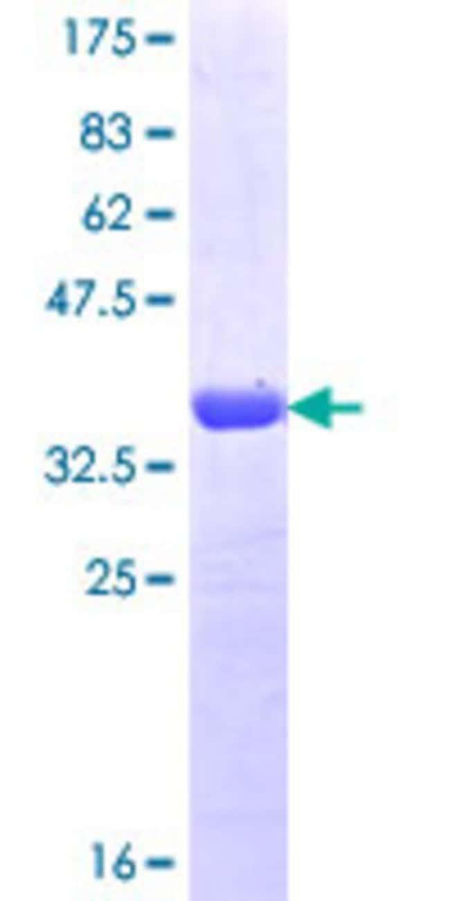 AbnovaHuman HCN4 Partial ORF (NP_005468.1, 1105 a.a. - 1203 a.a.) Recombinant