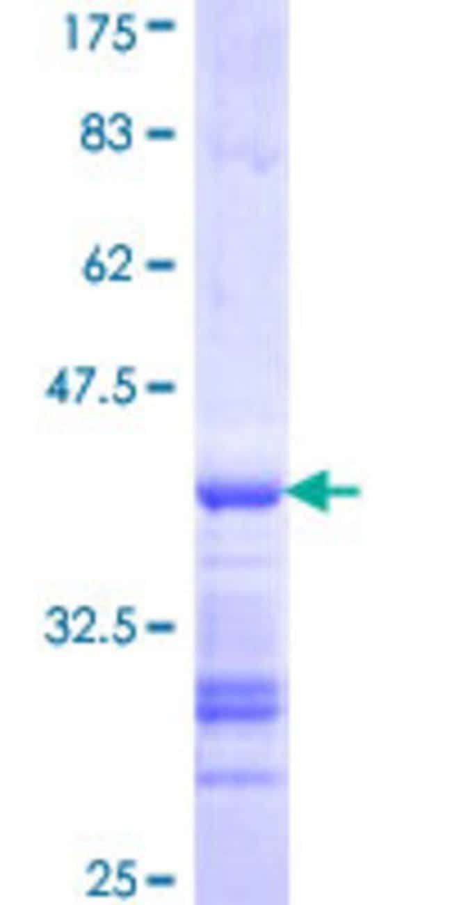 Abnova™Human TROAP Partial ORF (NP_005471, 181 a.a. - 280 a.a.) Recombinant Protein with GST-tag at N-terminal 25μg Abnova™Human TROAP Partial ORF (NP_005471, 181 a.a. - 280 a.a.) Recombinant Protein with GST-tag at N-terminal