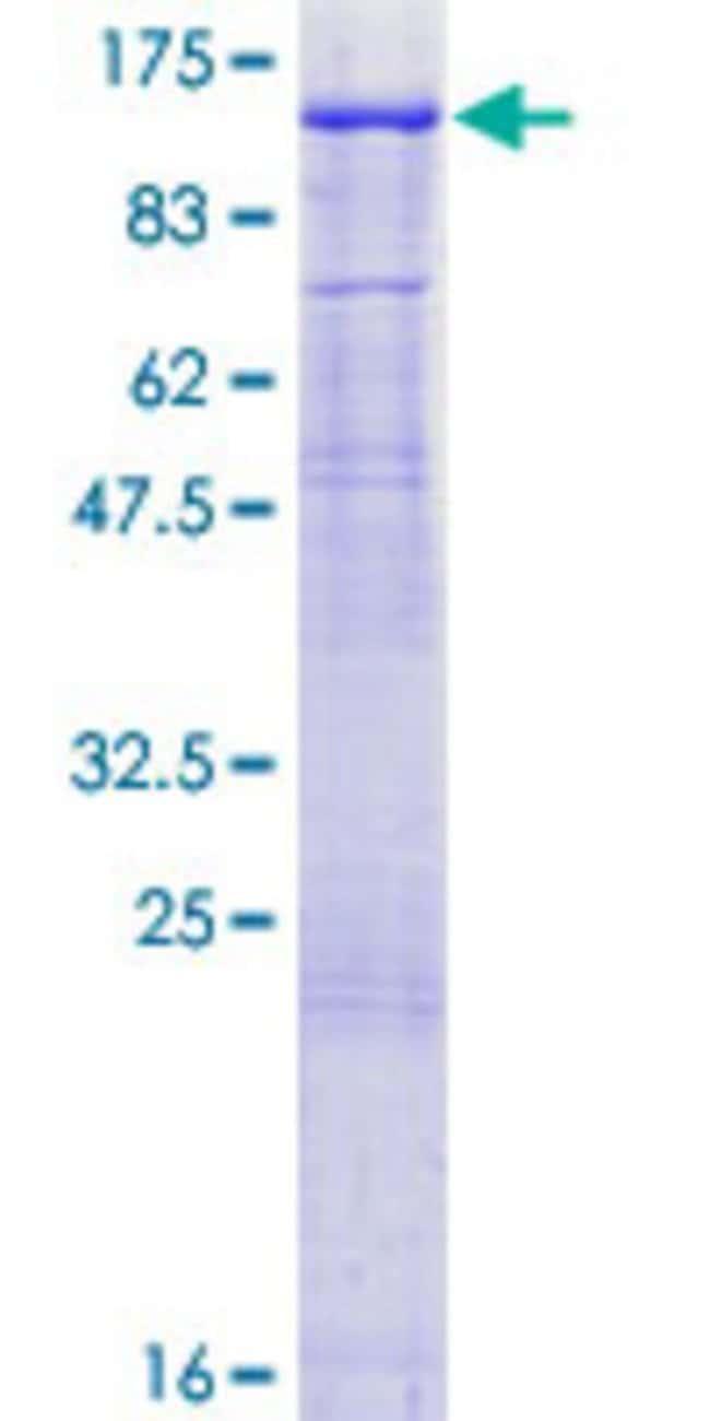 AbnovaHuman MED16 Full-length ORF (AAH17282.1, 1 a.a. - 860 a.a.) Recombinant
