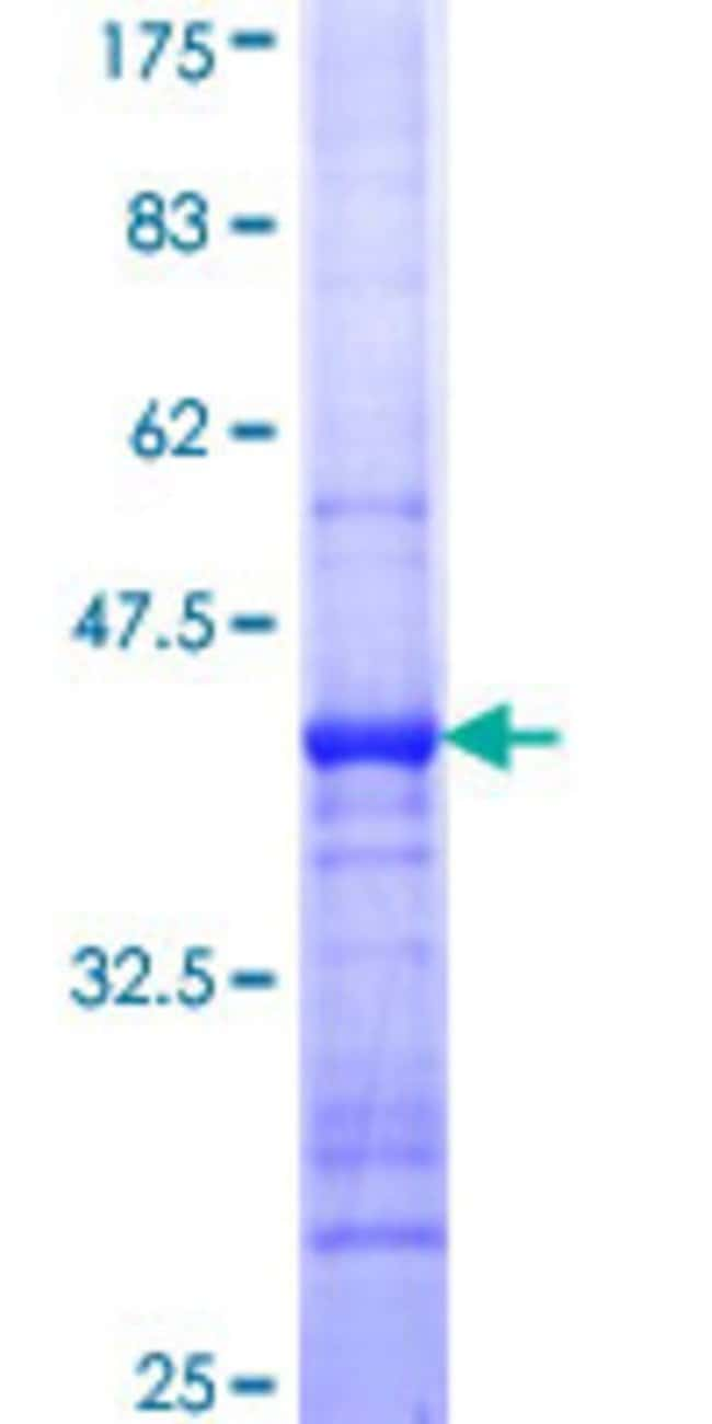 Abnova™Human PIGK Partial ORF (NP_005473, 268 a.a. - 366 a.a.) Recombinant Protein with GST-tag at N-terminal 10μg Abnova™Human PIGK Partial ORF (NP_005473, 268 a.a. - 366 a.a.) Recombinant Protein with GST-tag at N-terminal