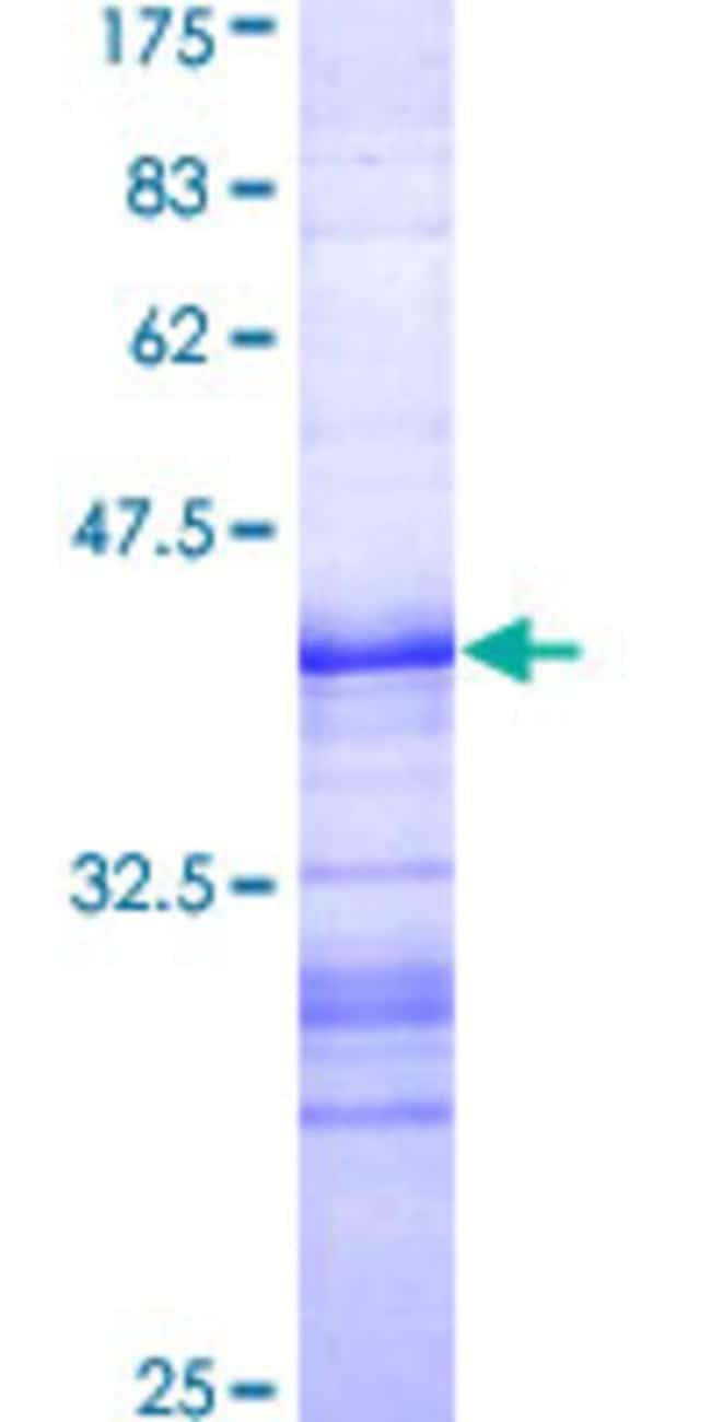 AbnovaHuman CHAF1A Partial ORF (AAH67093, 21 a.a. - 120 a.a.) Recombinant