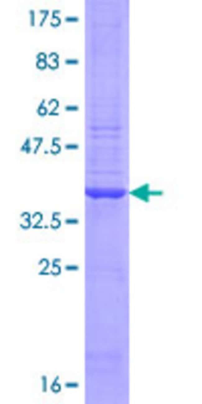 AbnovaHuman PARP2 Partial ORF (NP_005475.1, 435 a.a. - 534 a.a.) Recombinant