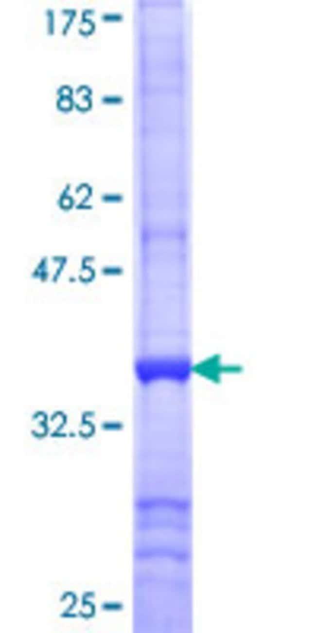 AbnovaHuman TOM1L1 Partial ORF (NP_005477, 1 a.a. - 100 a.a.) Recombinant