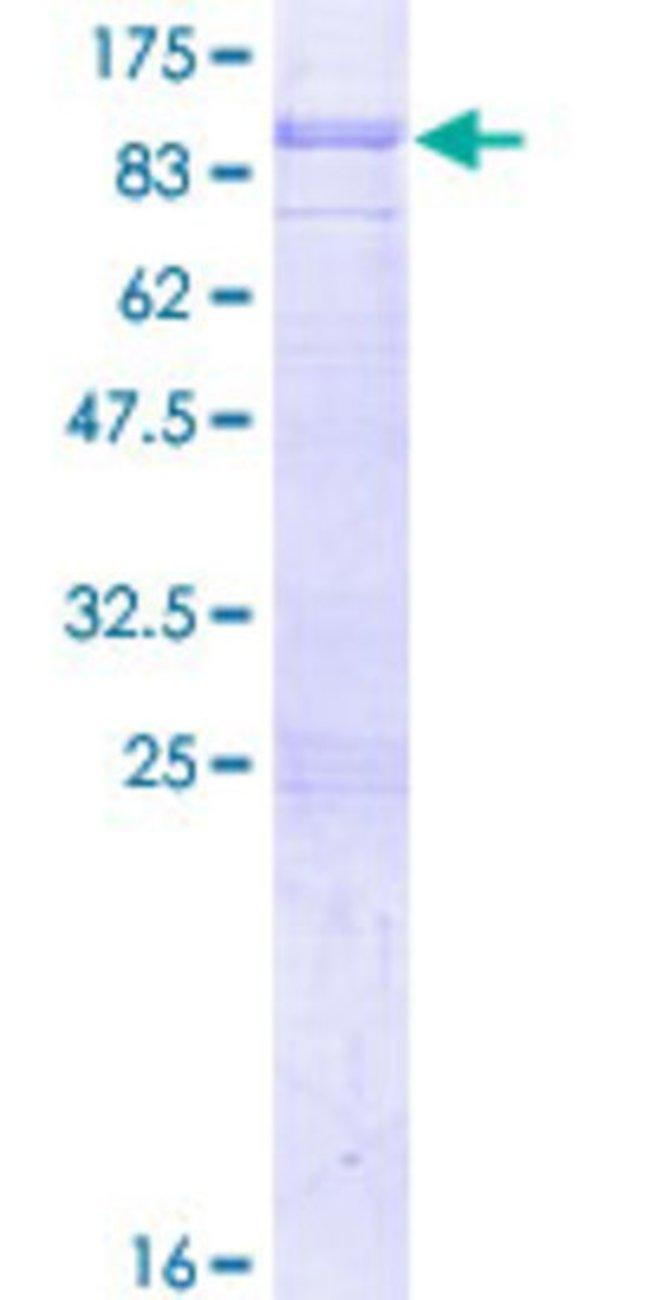 AbnovaHuman SH2D3A Full-length ORF (AAH06281.1, 1 a.a. - 576 a.a.) Recombinant