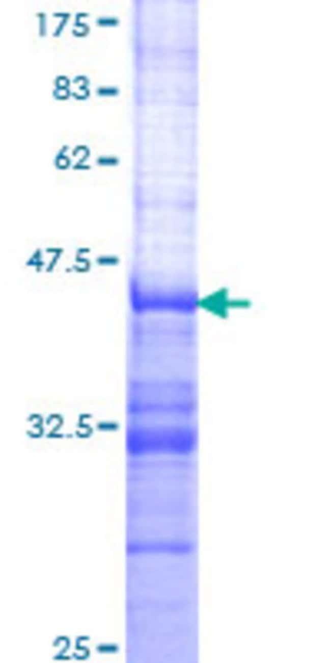 Abnova™Human SH2D3A Partial ORF (NP_005481, 460 a.a. - 575 a.a.) Recombinant Protein with GST-tag at N-terminal 25μg Abnova™Human SH2D3A Partial ORF (NP_005481, 460 a.a. - 575 a.a.) Recombinant Protein with GST-tag at N-terminal