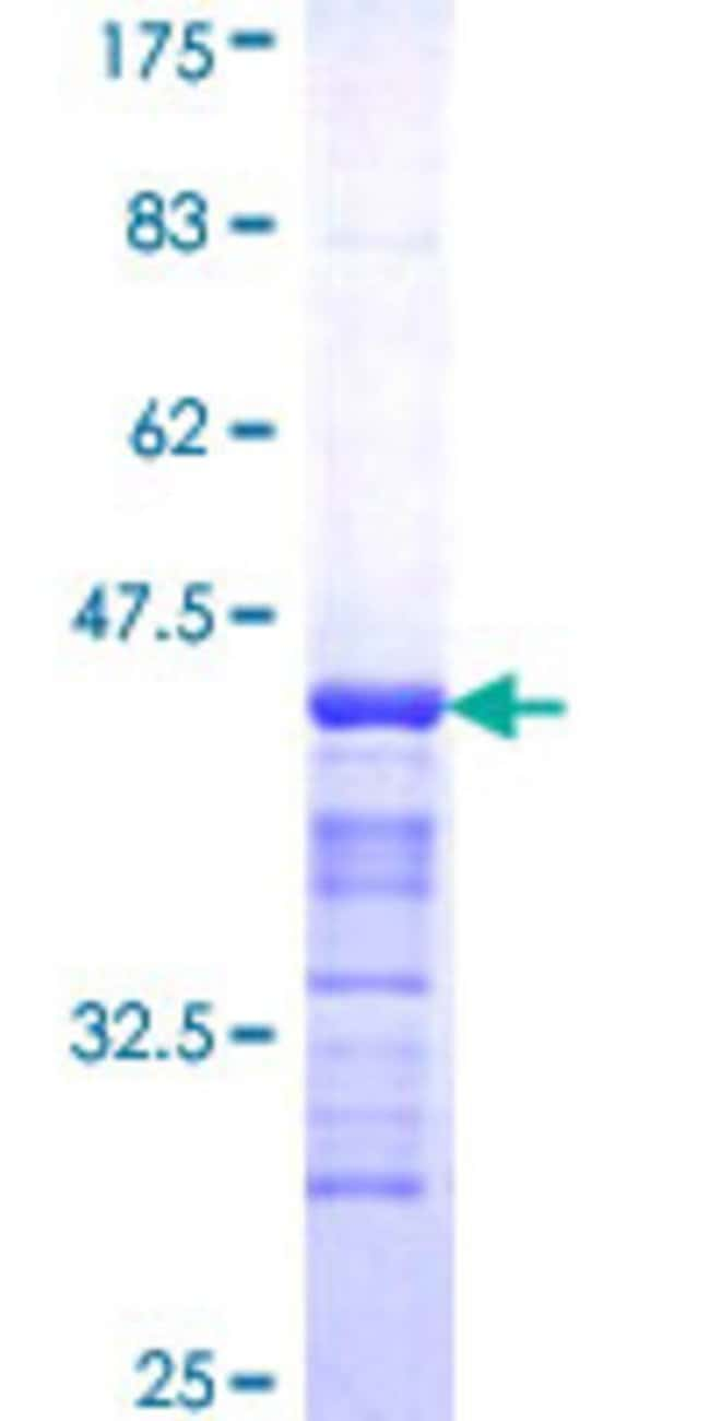 Abnova™Human GALNT1 Partial ORF (NP_065207, 42 a.a. - 123 a.a.) Recombinant Protein with GST-tag at N-terminal 10μg Abnova™Human GALNT1 Partial ORF (NP_065207, 42 a.a. - 123 a.a.) Recombinant Protein with GST-tag at N-terminal