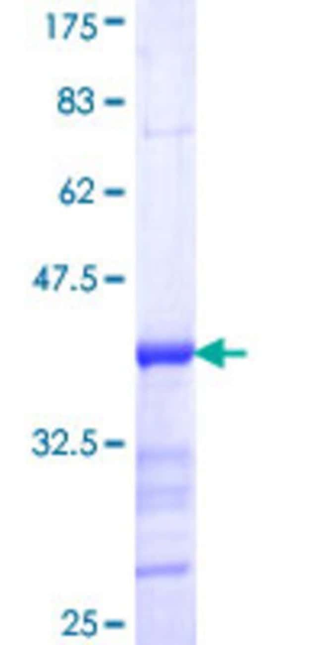 Abnova™Human CXorf6 Partial ORF (NP_005482, 603 a.a. - 701 a.a.) Recombinant Protein with GST-tag at N-terminal 10μg Abnova™Human CXorf6 Partial ORF (NP_005482, 603 a.a. - 701 a.a.) Recombinant Protein with GST-tag at N-terminal