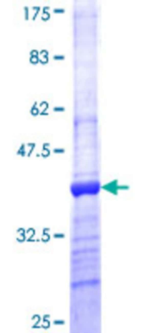 AbnovaHuman CST8 Partial ORF (NP_005483, 43 a.a. - 142 a.a.) Recombinant