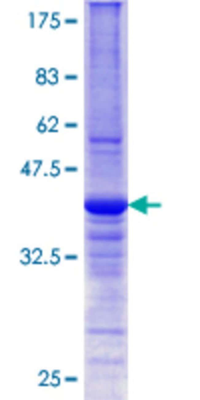 AbnovaHuman DNAJB6 Partial ORF (AAH00177.1, 72 a.a. - 172 a.a.) Recombinant