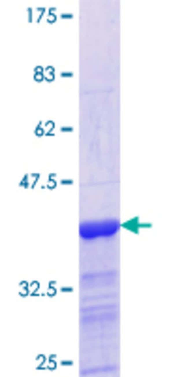 Abnova™Human GALNT3 Partial ORF (NP_004473.1, 43 a.a. - 138 a.a.) Recombinant Protein with GST-tag at N-terminal 10μg Abnova™Human GALNT3 Partial ORF (NP_004473.1, 43 a.a. - 138 a.a.) Recombinant Protein with GST-tag at N-terminal