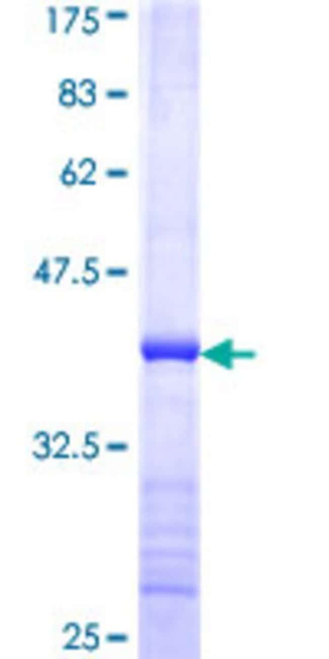 AbnovaHuman SMC4L1 Partial ORF (NP_005487, 646 a.a. - 755 a.a.) Recombinant