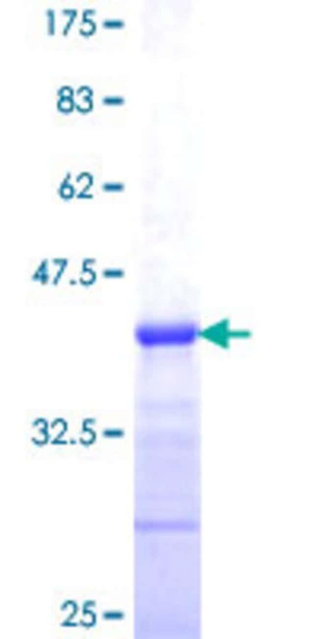AbnovaHuman GJA7 Partial ORF (NP_005488, 297 a.a. - 396 a.a.) Recombinant