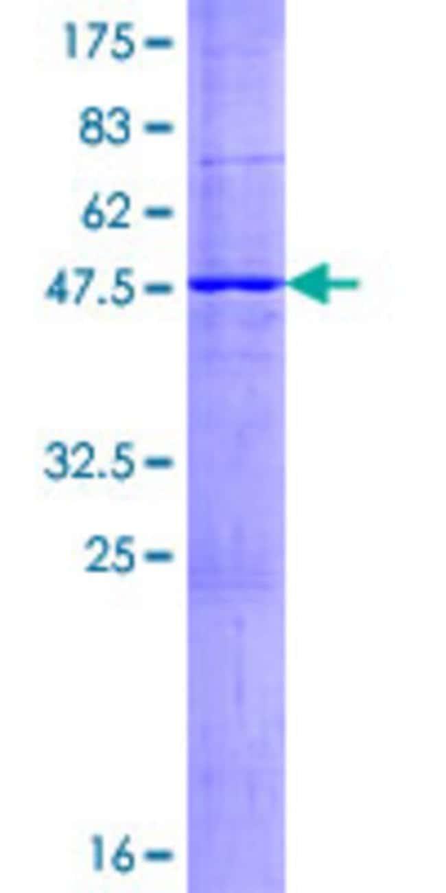 AbnovaHuman ABCC5 Full-length ORF (NP_001018881.1, 1 a.a. - 208 a.a.) Recombinant