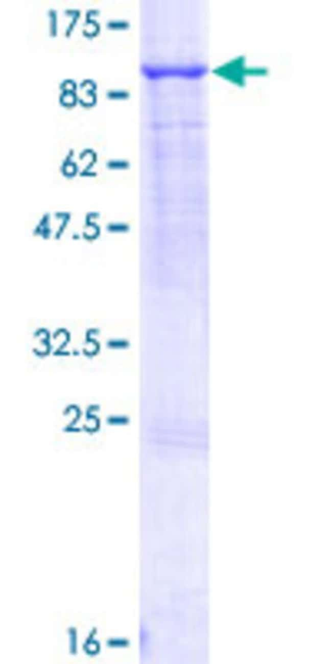 Abnova™Human ABCF2 Full-length ORF (NP_009120.1, 1 a.a. - 623 a.a.) Recombinant Protein with GST-tag at N-terminal 10μg Abnova™Human ABCF2 Full-length ORF (NP_009120.1, 1 a.a. - 623 a.a.) Recombinant Protein with GST-tag at N-terminal