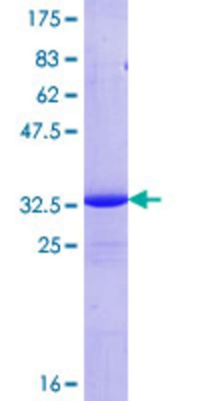 AbnovaHuman COX17 Full-length ORF (NP_005685.1, 1 a.a. - 63 a.a.) Recombinant
