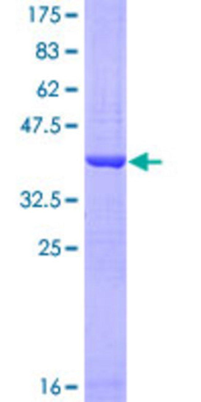 AbnovaHuman COX17 Partial ORF (NP_005685, 1 a.a. - 63 a.a.) Recombinant