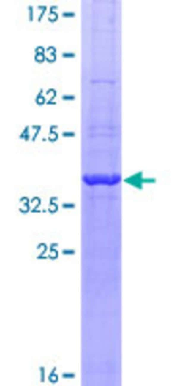 Abnova™Human GAPDH Partial ORF (NP_002037, 226 a.a. - 335 a.a.) Recombinant Protein with GST-tag at N-terminal 25μg Abnova™Human GAPDH Partial ORF (NP_002037, 226 a.a. - 335 a.a.) Recombinant Protein with GST-tag at N-terminal