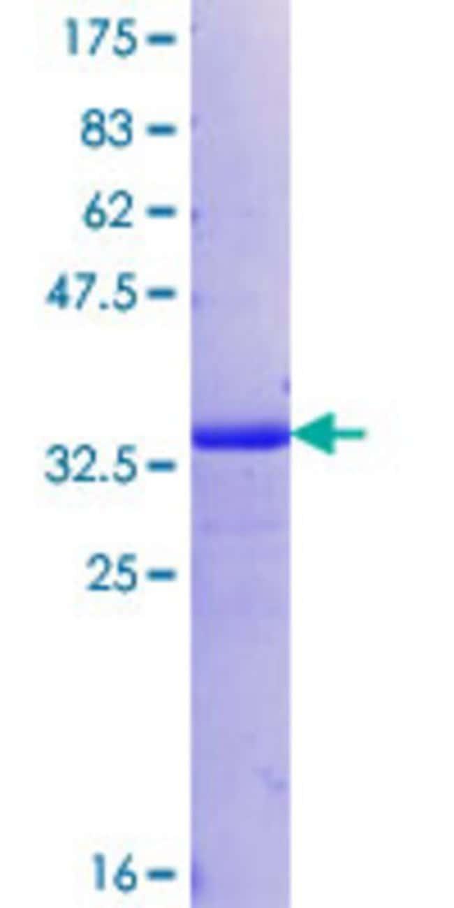 AbnovaHuman MUC12 Partial ORF (XP_379904.2, 391 a.a. - 465 a.a.) Recombinant