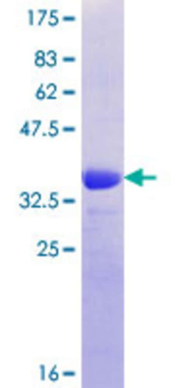 Abnova™Human MUC12 Partial ORF (XP_499350.1, 31 a.a. - 120 a.a.) Recombinant Protein with GST-tag at N-terminal 10μg Abnova™Human MUC12 Partial ORF (XP_499350.1, 31 a.a. - 120 a.a.) Recombinant Protein with GST-tag at N-terminal