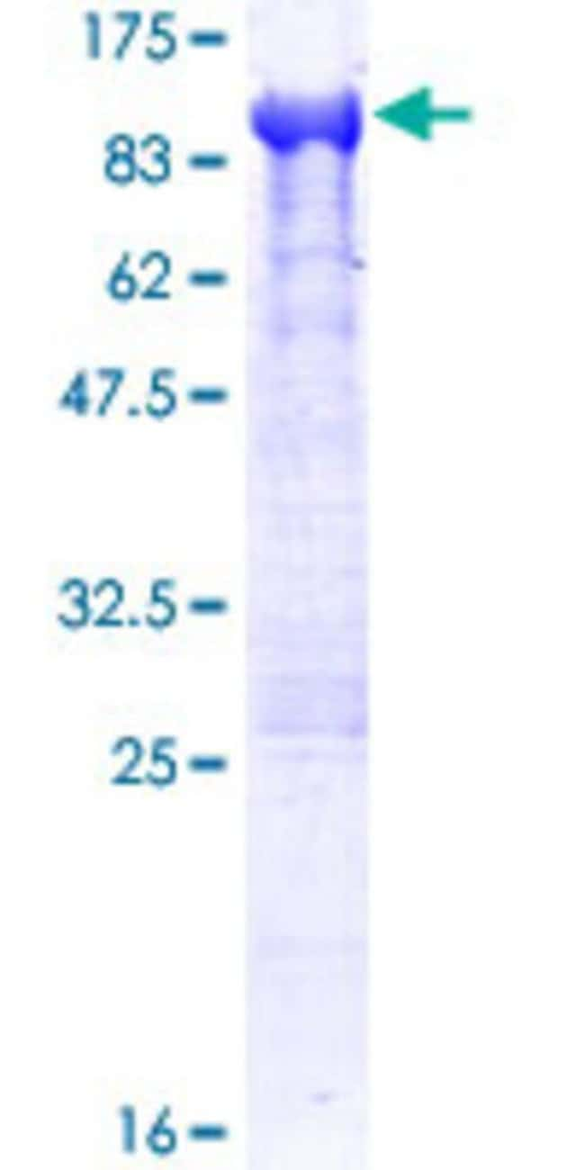 Abnova™ Human DPP3 Full-length ORF (NP_005691.2, 1 a.a. - 737 a.a.) Recombinant Protein with GST-tag at N-terminal 10μg Abnova™ Human DPP3 Full-length ORF (NP_005691.2, 1 a.a. - 737 a.a.) Recombinant Protein with GST-tag at N-terminal