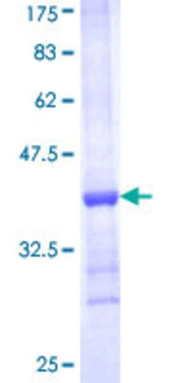 AbnovaHuman HUWE1 Partial ORF (NP_113584, 4281 a.a. - 4374 a.a.) Recombinant