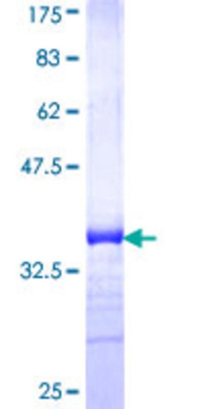 AbnovaHuman PHEMX Partial ORF (NP_005696, 194 a.a. - 290 a.a.) Recombinant