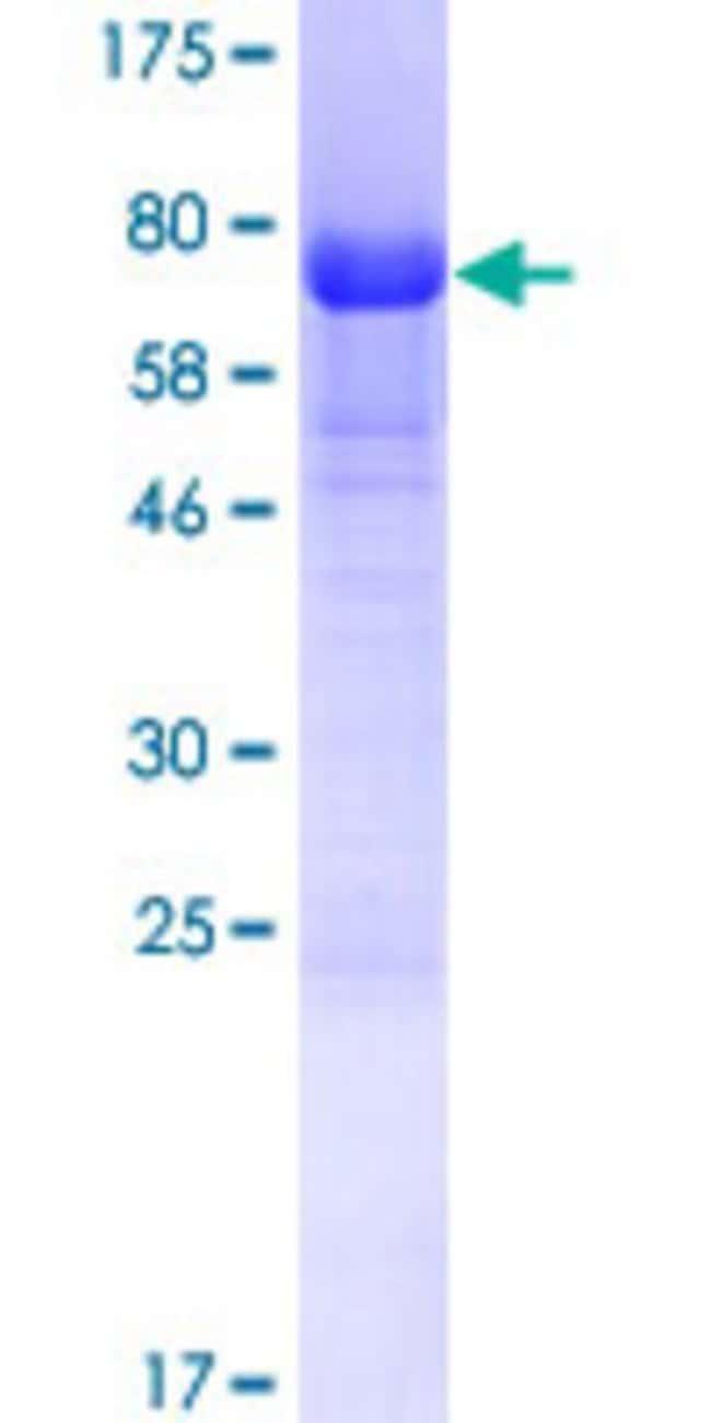 AbnovaHuman TSSC4 Full-length ORF (AAH06091.1, 1 a.a. - 329 a.a.) Recombinant