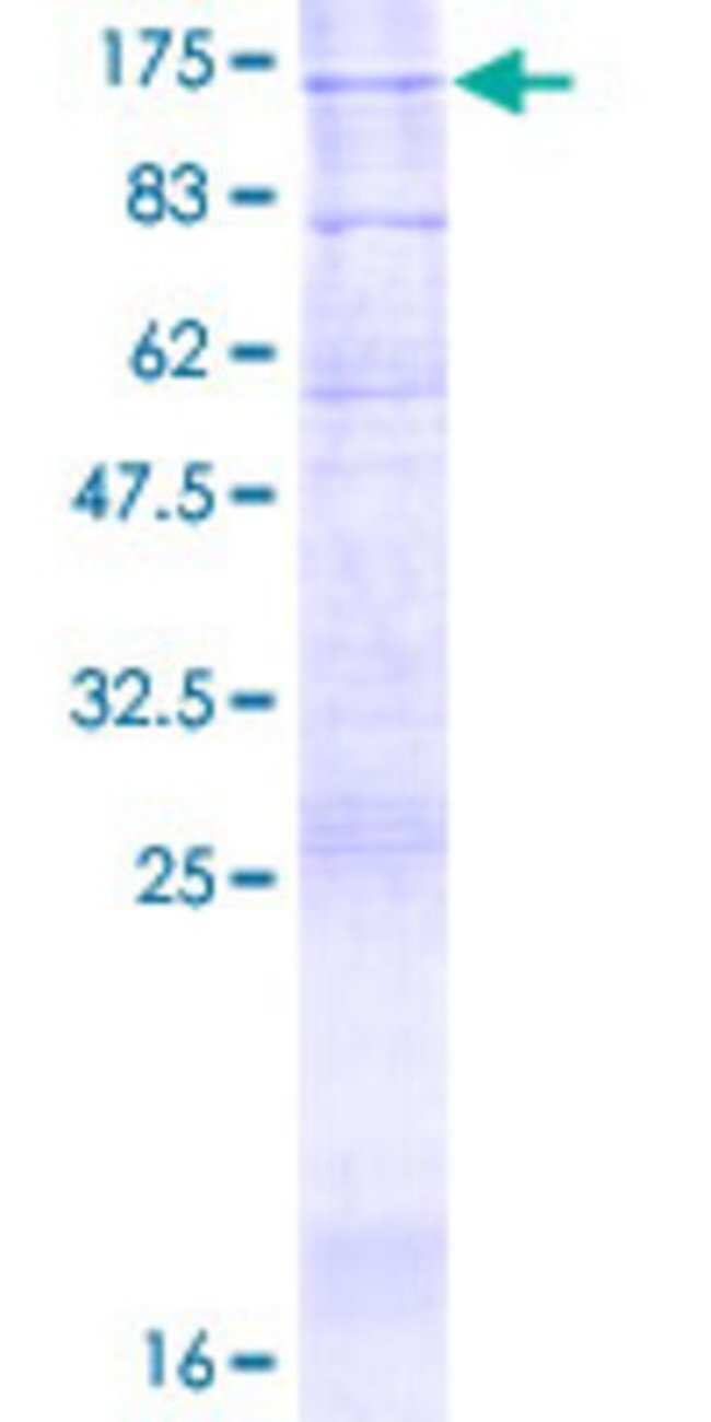 AbnovaHuman ATP9A Full-length ORF (NP_006036.1, 1 a.a. - 1047 a.a.) Recombinant
