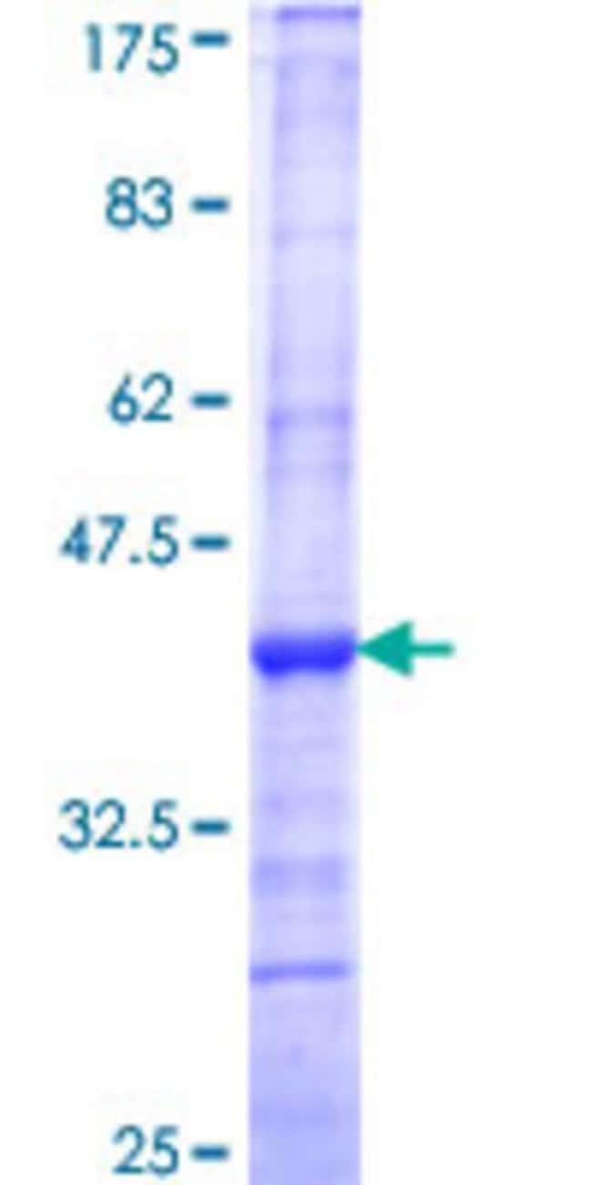 AbnovaHuman ATP9A Partial ORF (NP_006036, 358 a.a. - 456 a.a.) Recombinant