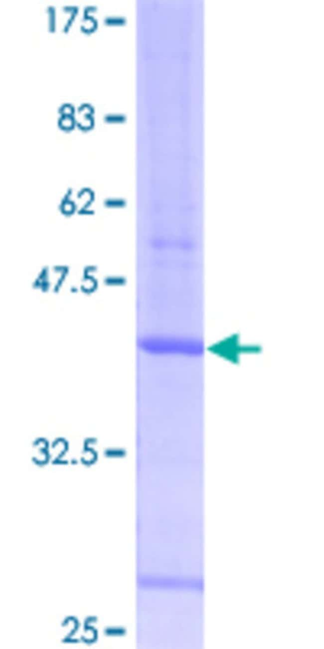 Abnova™ Human PDCD7 Full-length ORF (AAH16992, 1 a.a. - 110 a.a.) Recombinant Protein with GST-tag at N-terminal 25μg Abnova™ Human PDCD7 Full-length ORF (AAH16992, 1 a.a. - 110 a.a.) Recombinant Protein with GST-tag at N-terminal
