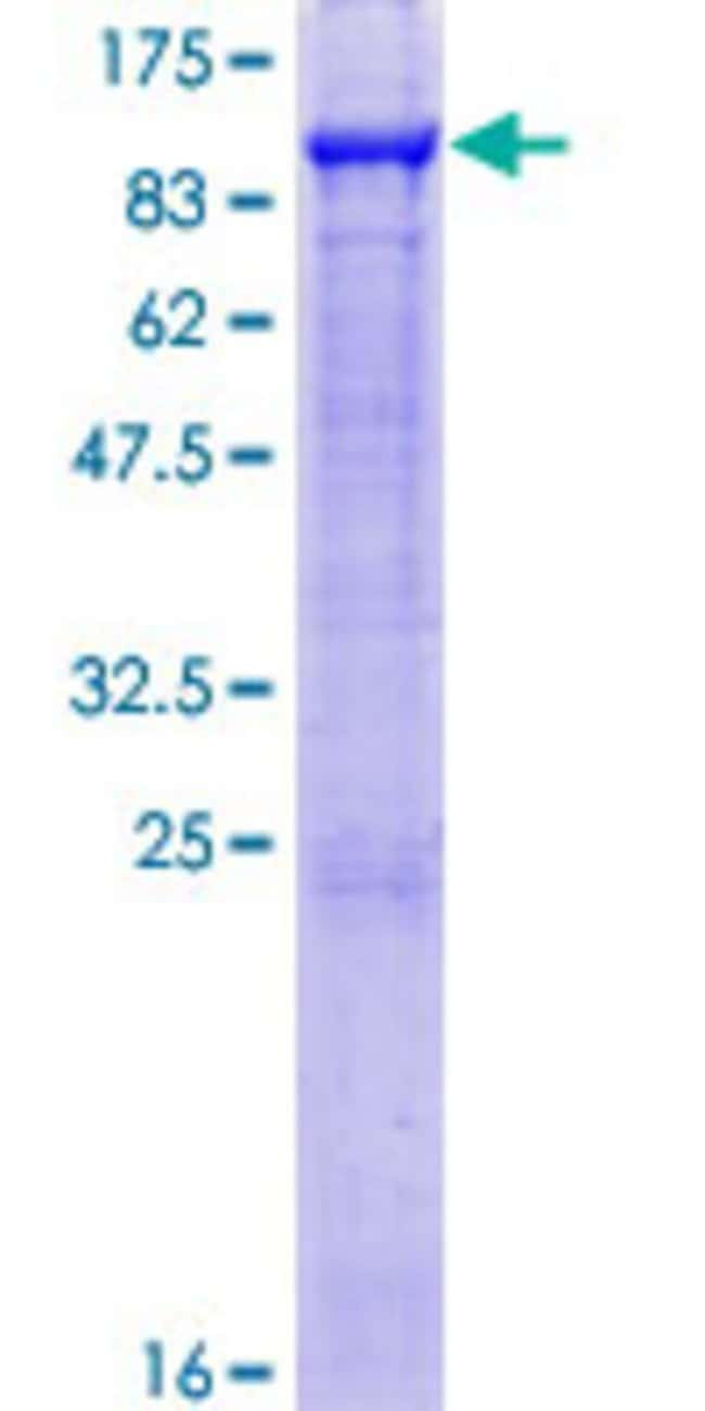 Abnova™ Human GAS6 Full-length ORF (NP_000811.1, 1 a.a. - 678 a.a.) Recombinant Protein with GST-tag at N-terminal 10μg Abnova™ Human GAS6 Full-length ORF (NP_000811.1, 1 a.a. - 678 a.a.) Recombinant Protein with GST-tag at N-terminal