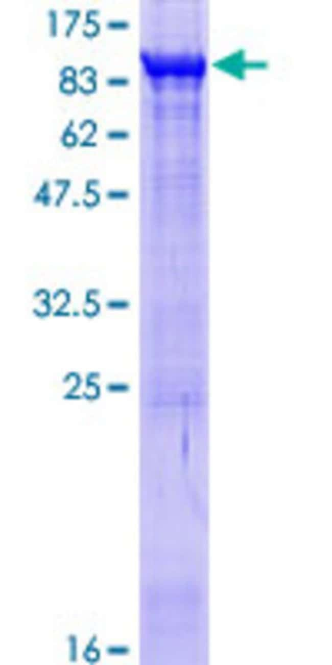 AbnovaHuman COL4A3BP Full-length ORF (NP_112729.1, 1 a.a. - 598 a.a.) Recombinant