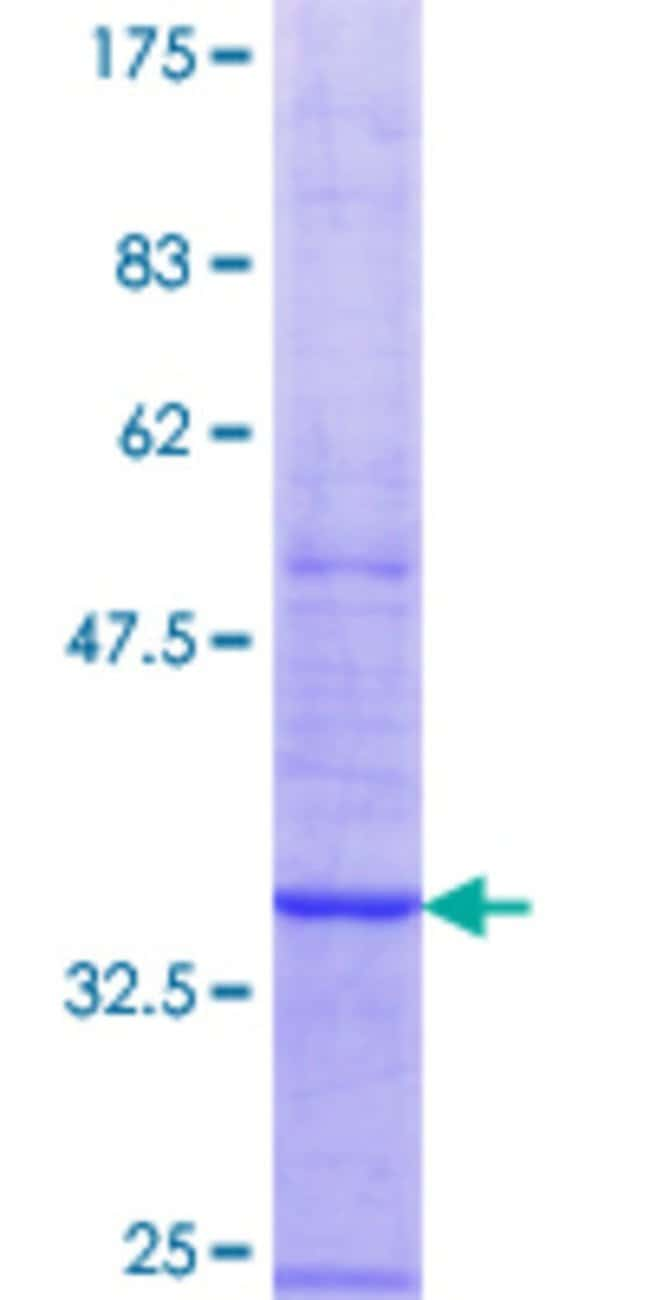 Abnova™ Human ARPC5 Partial ORF (AAH57237.1, 31 a.a. - 89 a.a.) Recombinant Protein with GST-tag at N-terminal 10μg Abnova™ Human ARPC5 Partial ORF (AAH57237.1, 31 a.a. - 89 a.a.) Recombinant Protein with GST-tag at N-terminal