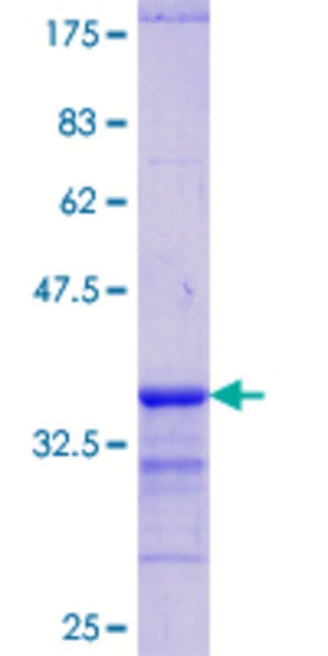 Abnova™Human GATA1 Partial ORF (ENSP00000365858, 123 a.a. - 199 a.a.) Recombinant Protein with GST-tag at N-terminal 25μg Abnova™Human GATA1 Partial ORF (ENSP00000365858, 123 a.a. - 199 a.a.) Recombinant Protein with GST-tag at N-terminal