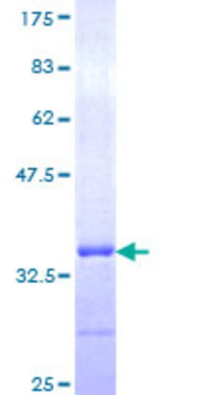 Abnova™Human TSPAN2 Partial ORF (NP_005716, 112 a.a. - 187 a.a.) Recombinant Protein with GST-tag at N-terminal 10μg Abnova™Human TSPAN2 Partial ORF (NP_005716, 112 a.a. - 187 a.a.) Recombinant Protein with GST-tag at N-terminal