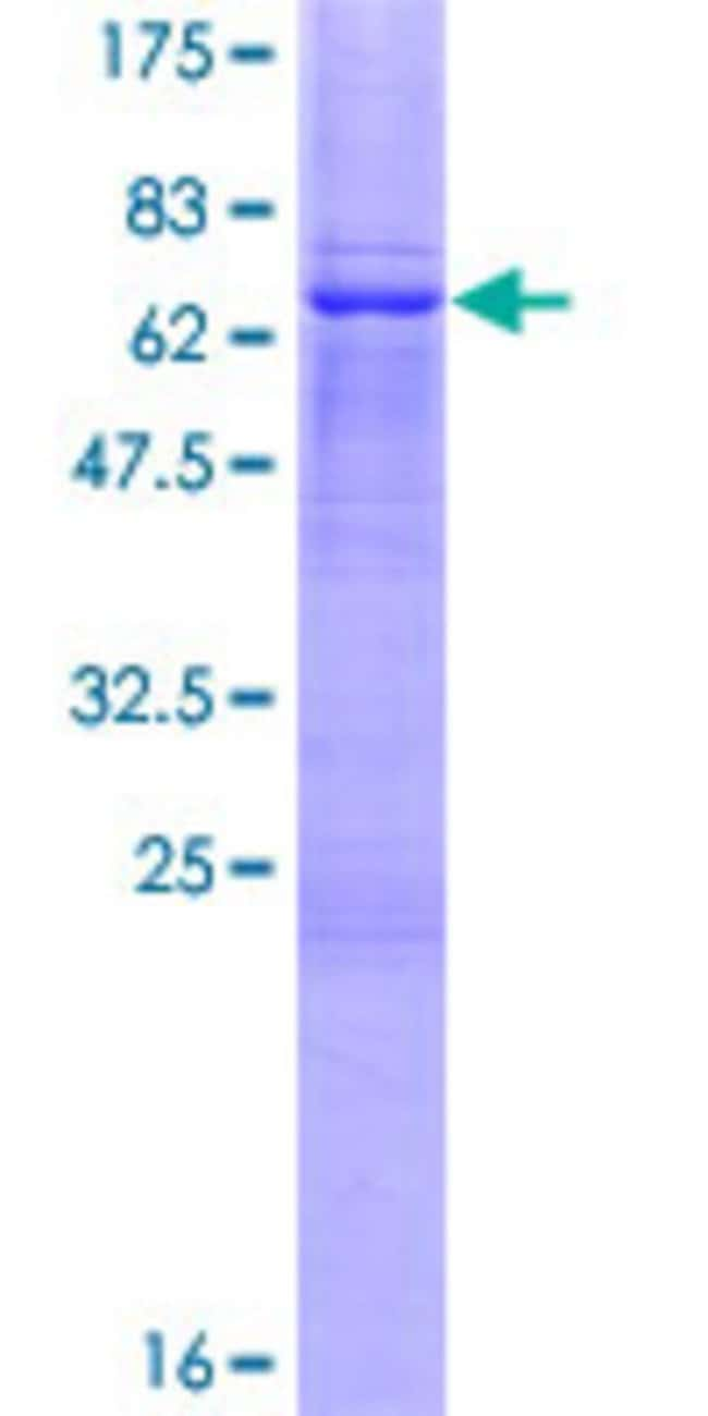 Abnova™ Human TSFM Full-length ORF (NP_005717.2, 1 a.a. - 346 a.a.) Recombinant Protein with GST-tag at N-terminal 25μg Abnova™ Human TSFM Full-length ORF (NP_005717.2, 1 a.a. - 346 a.a.) Recombinant Protein with GST-tag at N-terminal