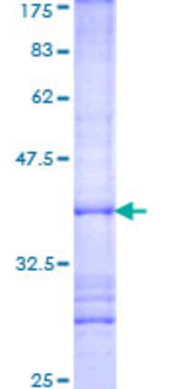 AbnovaHuman TSFM Partial ORF (NP_005717, 1 a.a. - 100 a.a.) Recombinant