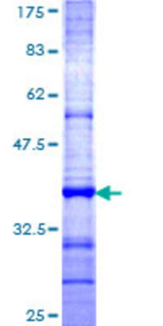 Abnova™Human TSPAN1 Partial ORF (NP_005718, 110 a.a. - 211 a.a.) Recombinant Protein with GST-tag at N-terminal 25μg Abnova™Human TSPAN1 Partial ORF (NP_005718, 110 a.a. - 211 a.a.) Recombinant Protein with GST-tag at N-terminal