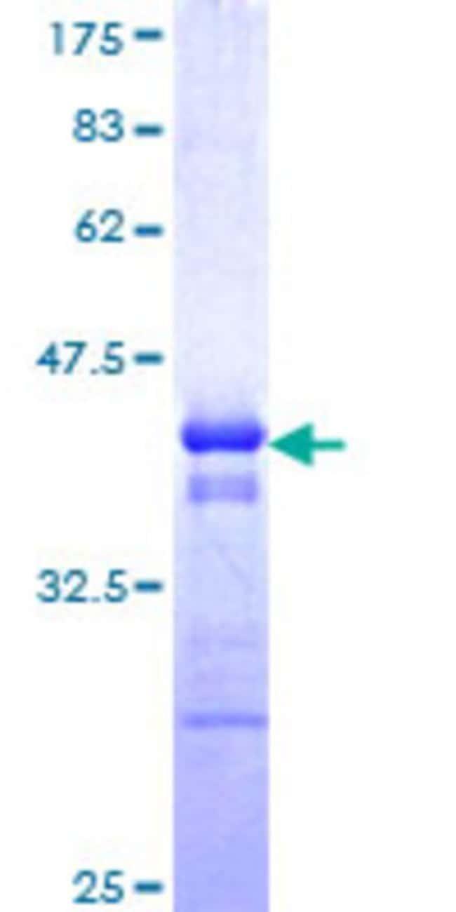 AbnovaHuman TRIM10 Partial ORF (NP_006769, 3 a.a. - 110 a.a.) Recombinant