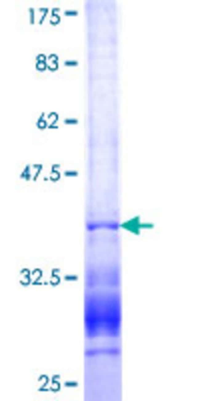 AbnovaHuman HIPK3 Partial ORF (NP_005725, 1018 a.a. - 1117 a.a.) Recombinant