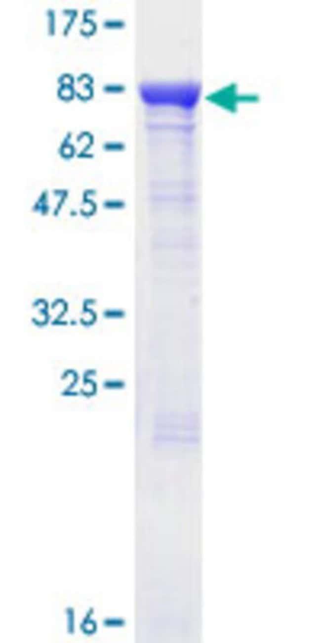 AbnovaHuman FEM1B Full-length ORF (NP_056137.1, 1 a.a. - 627 a.a.) Recombinant