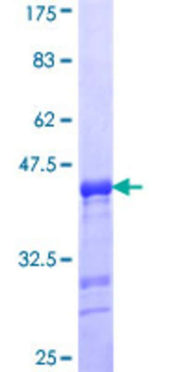 Abnova™Human ENAM Partial ORF (NP_114095, 1043 a.a. - 1141 a.a.) Recombinant Protein with GST-tag at N-terminal 25μg Abnova™Human ENAM Partial ORF (NP_114095, 1043 a.a. - 1141 a.a.) Recombinant Protein with GST-tag at N-terminal