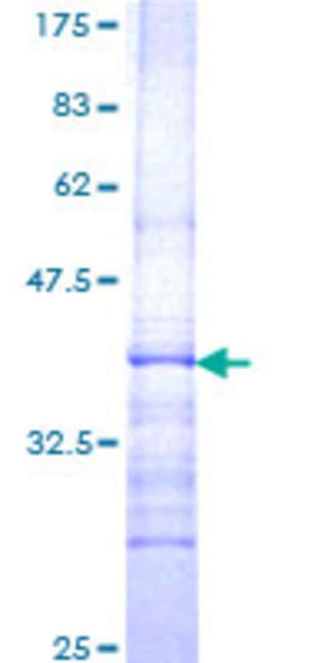 Abnova™Human GBA Partial ORF (NP_000148, 146 a.a. - 235 a.a.) Recombinant Protein with GST-tag at N-terminal 10μg Abnova™Human GBA Partial ORF (NP_000148, 146 a.a. - 235 a.a.) Recombinant Protein with GST-tag at N-terminal